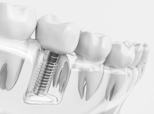 Anatomy of a dental implant.